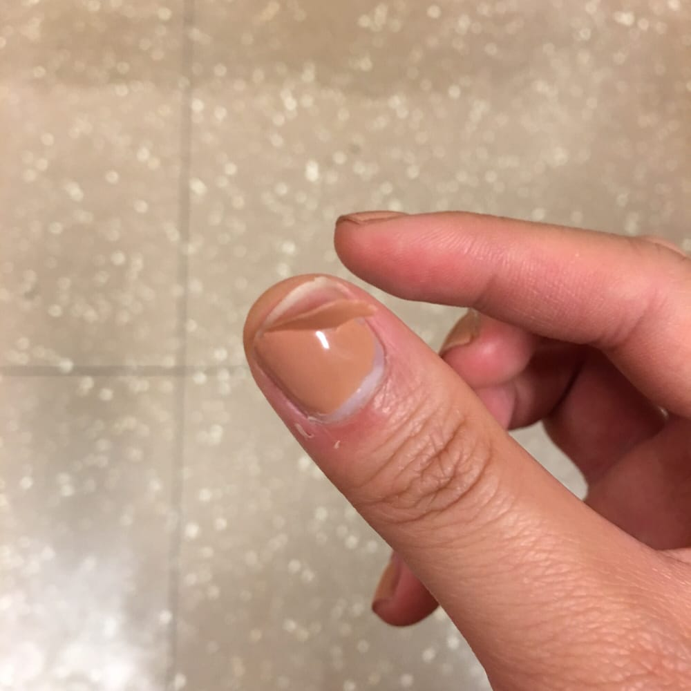 Huge piece of gel polish peeling off from my nail after less than 2 ...