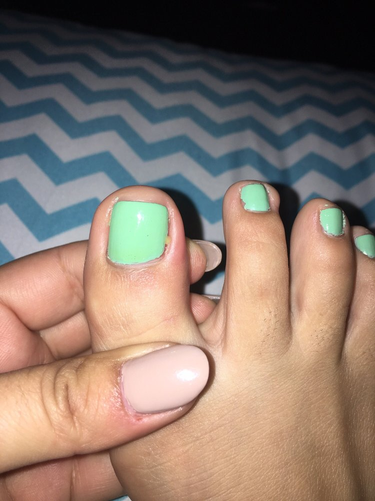 toe is infected after getting a pedi & I have another cut on the ...