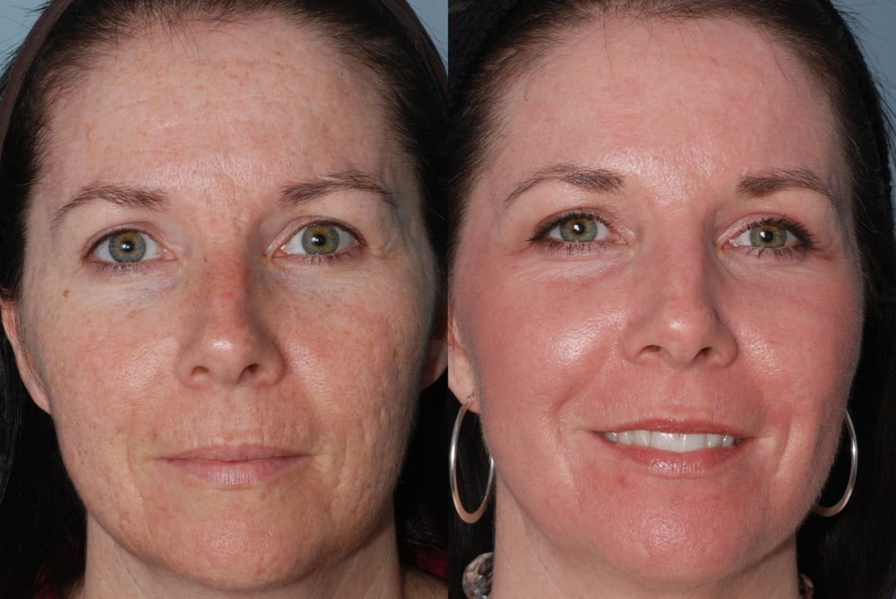 Acne Scars Treated With Tumescent Anesthesia Subcision
