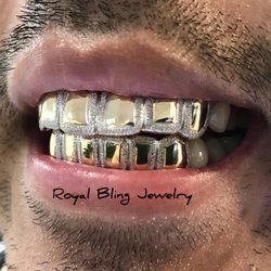 Royal Bling Jewelry Gold Teeth Specialists - 338 14th St