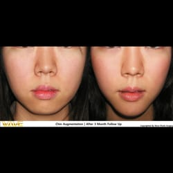 Think, that California cosmetic facial surgery and
