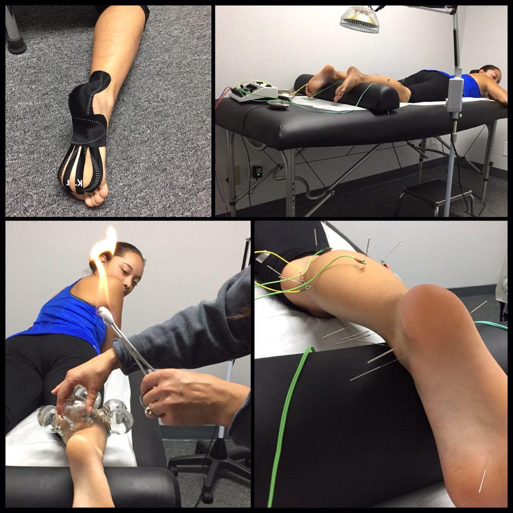 Underwood Sports Medicine Chiropractic: 3000 E Birch St, Brea, CA