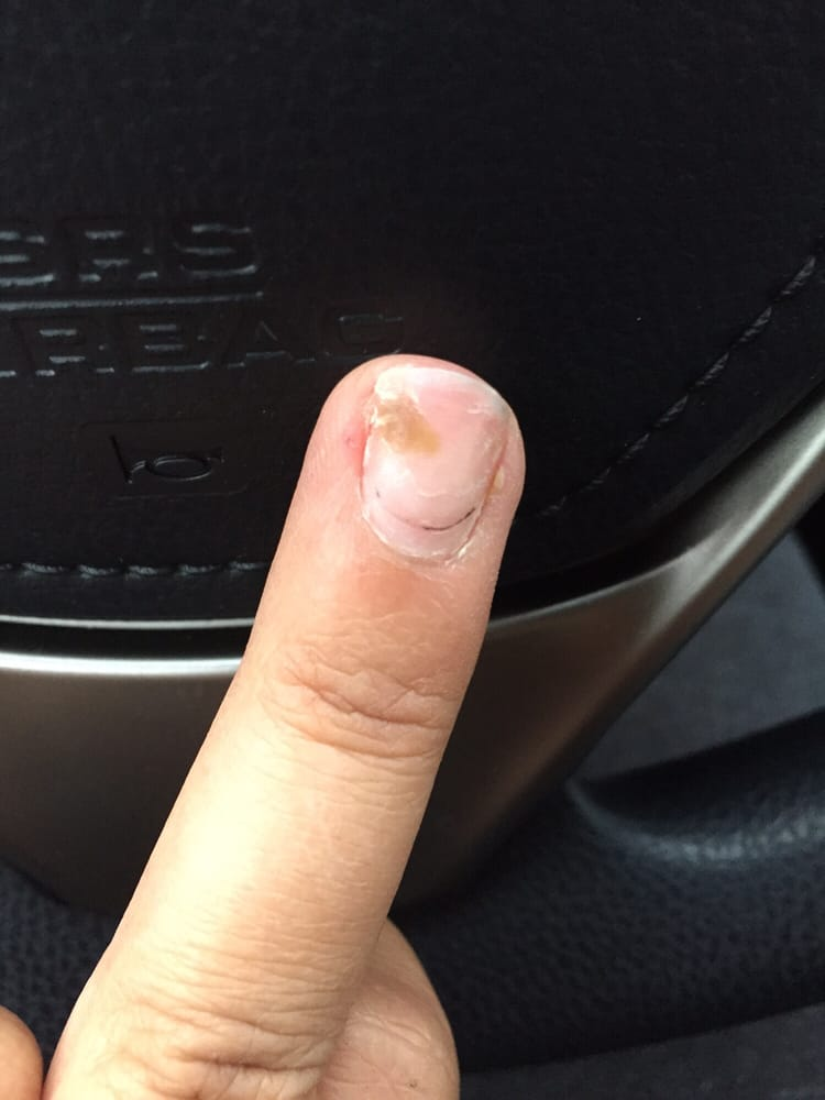 Took off my acrylic nails and found fungus under my natural nail ...
