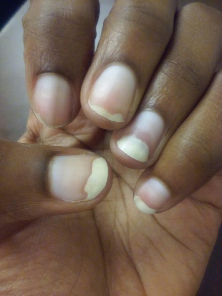 Nail fungus on 4 fingers! This is after 3 weeks of nail fungus ...