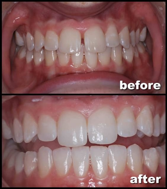Invisalign Before And After Gap Invisalign Gap Front T...