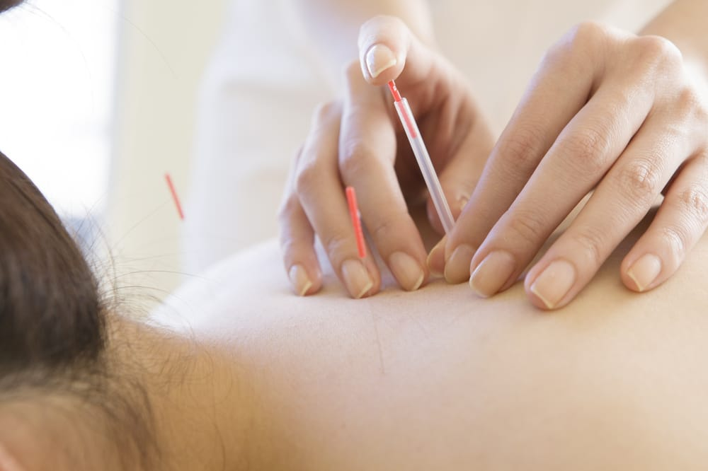Cho Acupuncture & Herbal Clinic - 15 Photos - Acupuncture ...