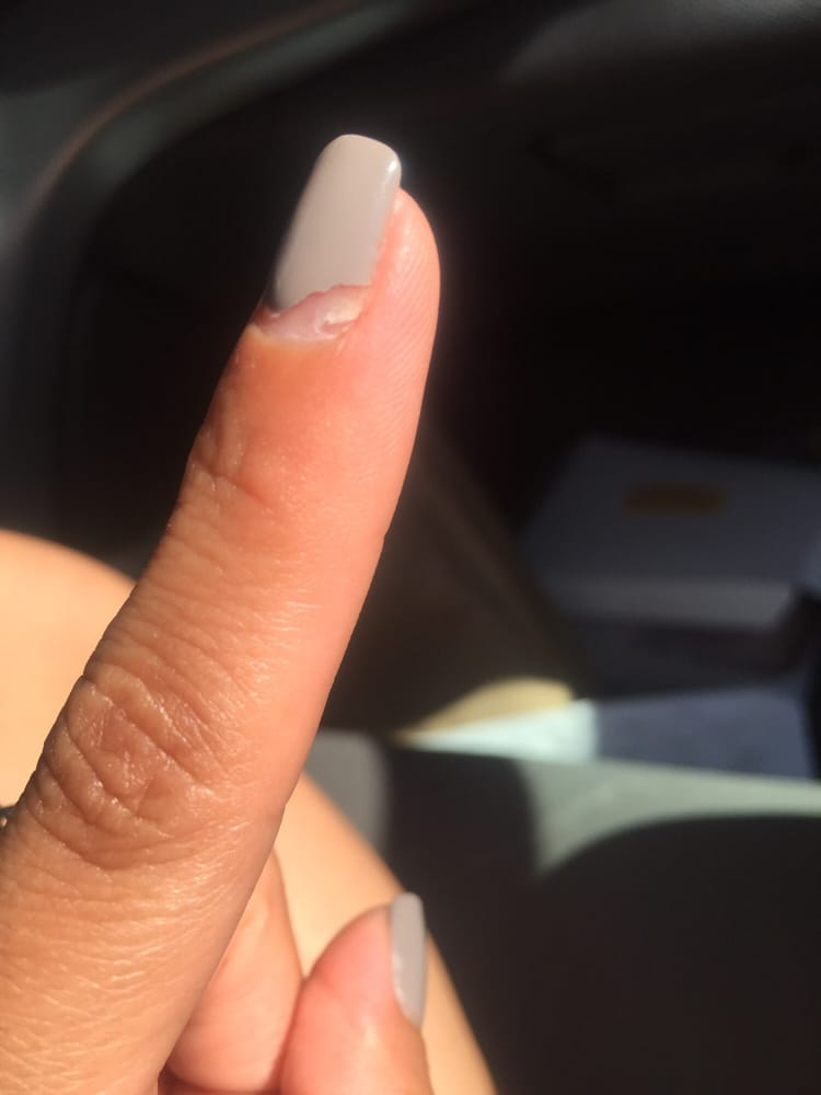 MY NAIL IS CRACKED AND COMING OFF FROM THE BOTTOM!!! I DID NOT HVE ...