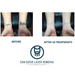 San Diego Laser Tattoo Removal 105 Photos 50 Reviews Tattoo
