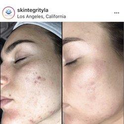 Skintegrity Integrative Skincare - 57 Photos & 37 Reviews - Skin