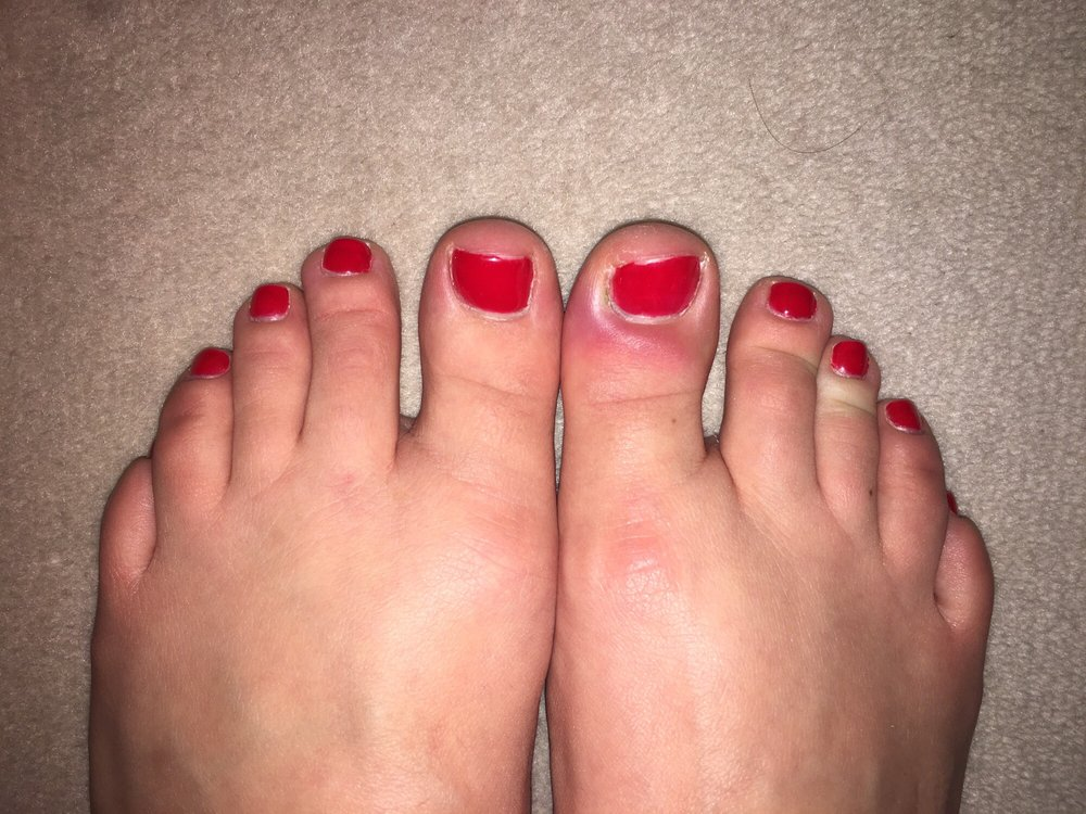 See review... infection in big right toe from pedicure - Yelp