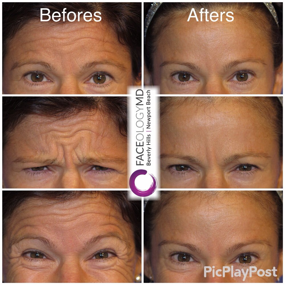 BOTOX® to reduce forehead wrinkles and crow's feet  Also