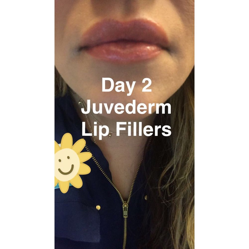 This is Day 2 after getting my Juvederm lip fillers  By Day