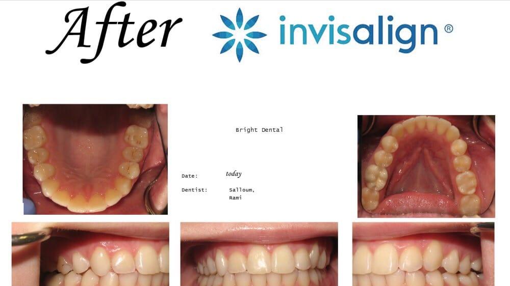 Bright Dental: 118 S Main St, Nazareth, PA