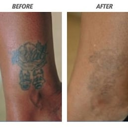 Photos for Clean Slate Laser Tattoo Removal - Staten Island - Yelp