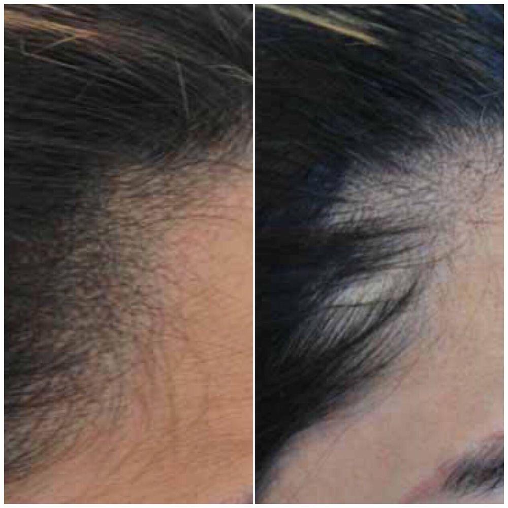 Hair Loss Solution For Women Scalp Micropigmentation Yelp