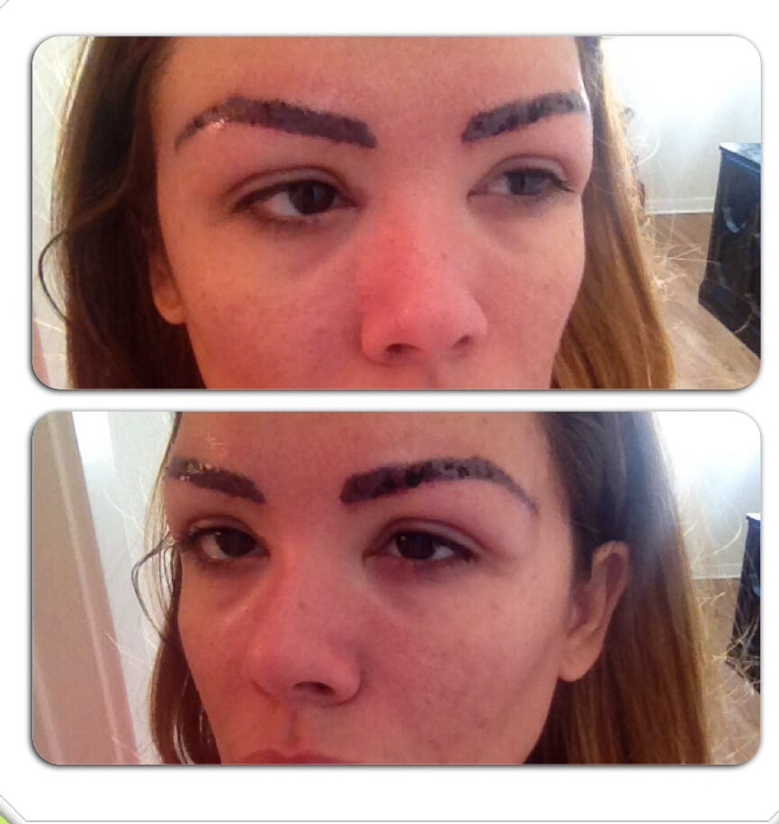 This is my 1st session of laser tattoo removal trying to for How to remove eyebrow tattoo at home