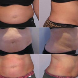 How can i lose belly fat in two weeks picture 6
