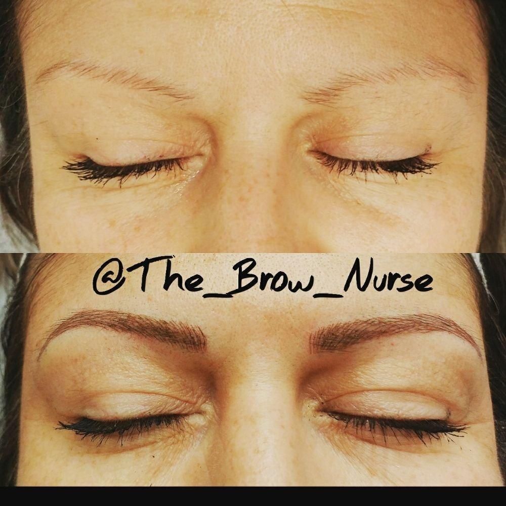 The Brow Nurse: 5 E Citrus Ave, Redlands, CA