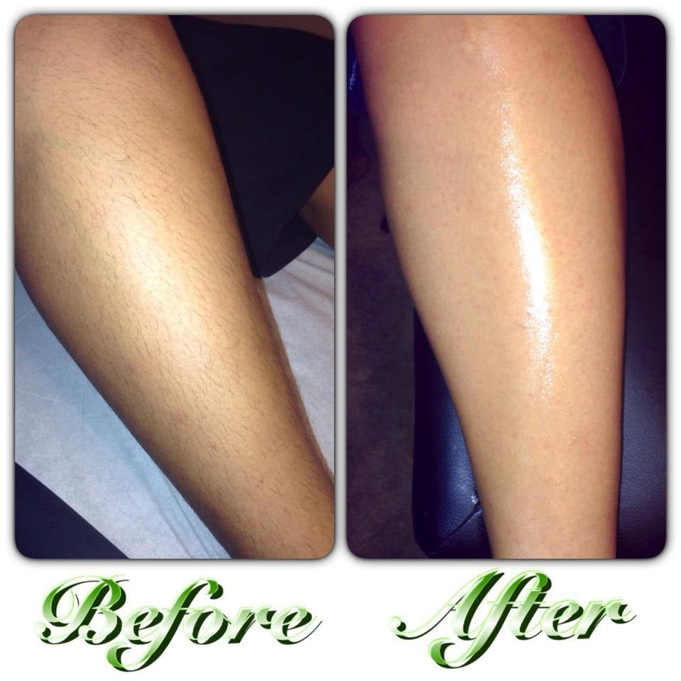 leg waxing before and after picture yelp. Black Bedroom Furniture Sets. Home Design Ideas