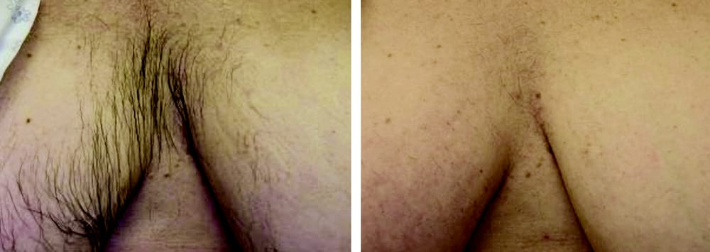 Before And After Laser Hair Removal Female Chest Yelp