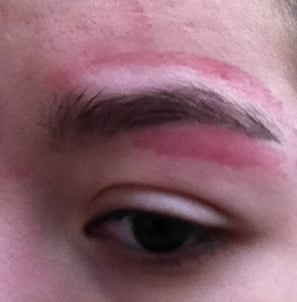 FIRST DEGREE BURN due to an eyebrow waxing done at PLANET
