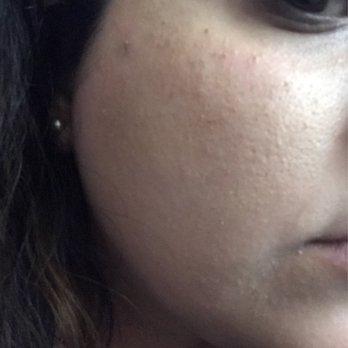 Renew Face & Body Wellness - 2121 Ygnacio Valley Rd, Walnut