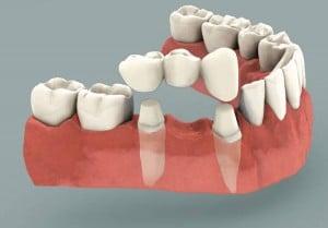 Bellbrook Family Dentistry: 4291 Sugarcreek Dr, Bellbrook, OH