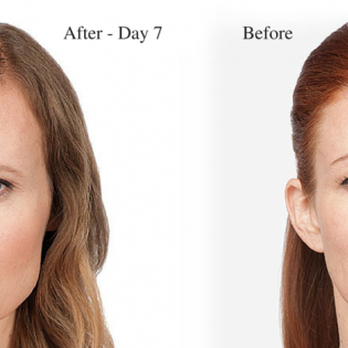 BOTOX® Cosmetic is the only FDA-approved treatment to
