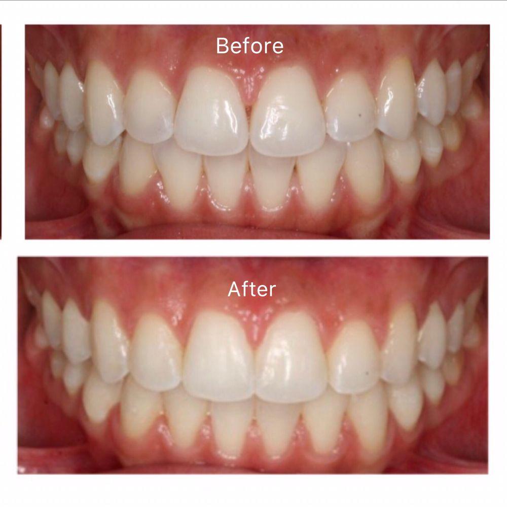 Bakar's Classic Smiles Orthodontics