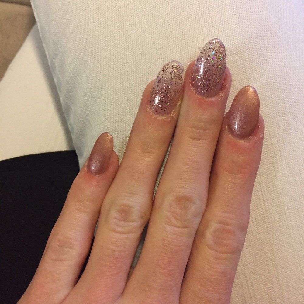 Dry/irritated cuticles with leftover glue. - Yelp