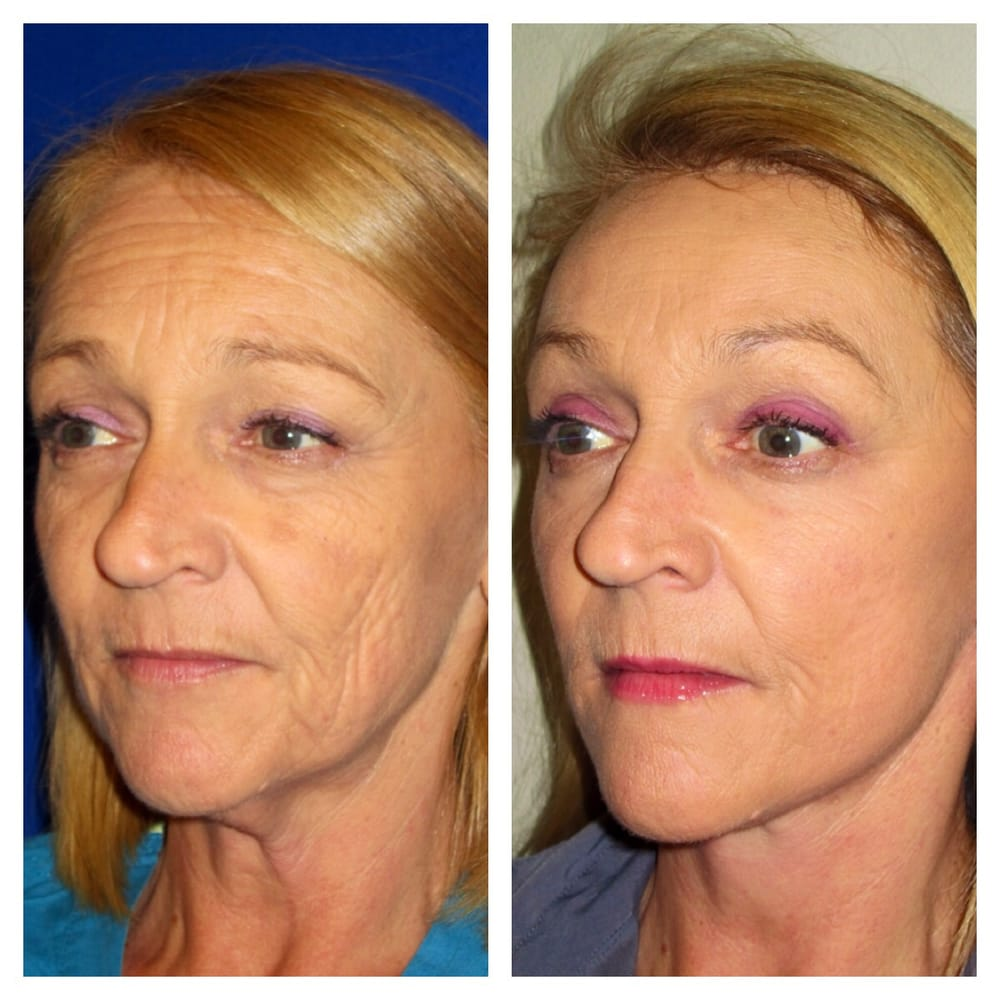 center for facial cosmetic surgery