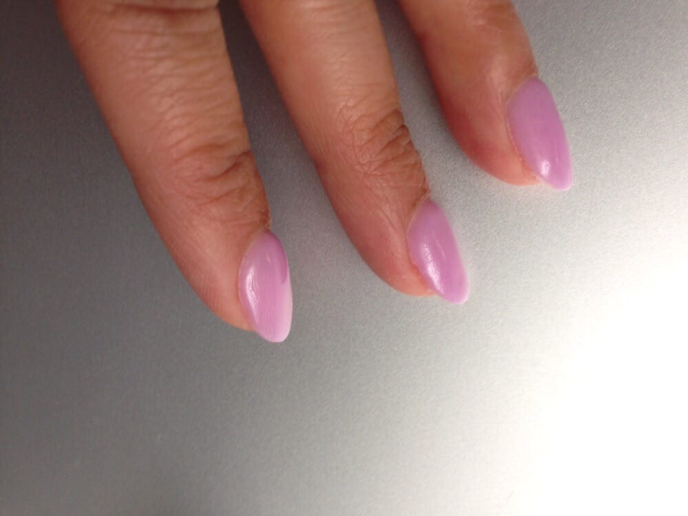 Thick NexGen nails that should have been fixed by John ...
