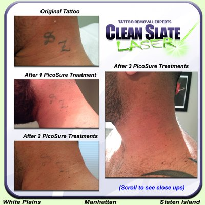Clean Slate Laser Tattoo Removal - Staten Island 282 New Dorp Ln ...