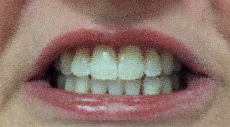 CS Family Dentistry: 708 Pecan St, Bastrop, TX