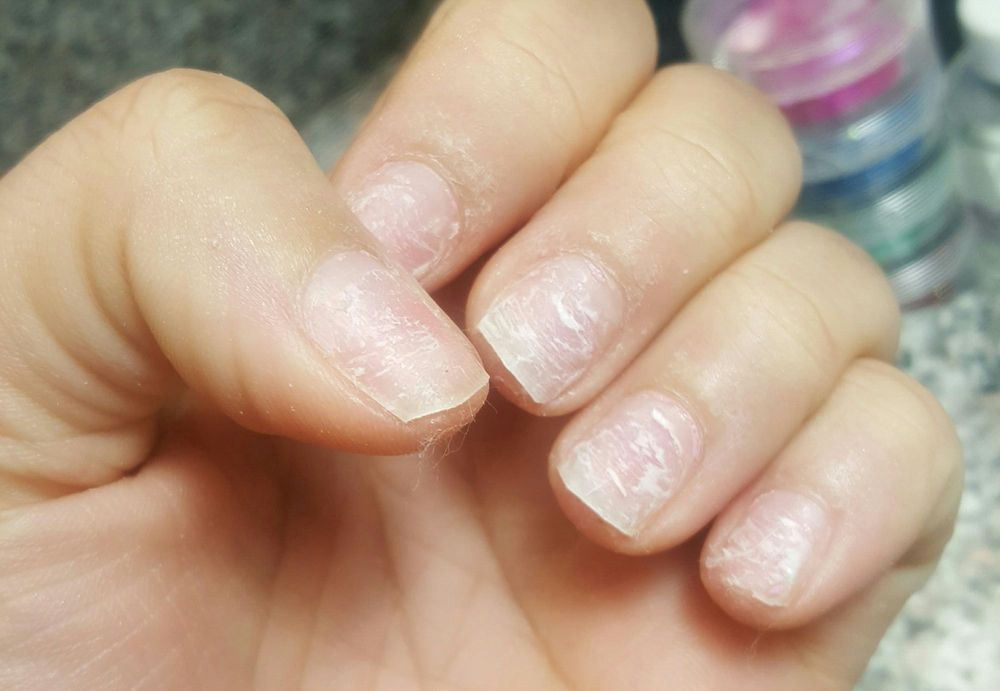 After she removed all the acrylic without breaking my nails or ...