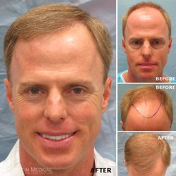 photo of bernstein medical center for hair restoration new york ny united - Bosley Review