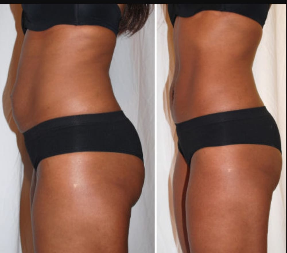 Strawberry Laser Lipo Before And After Photos Eight