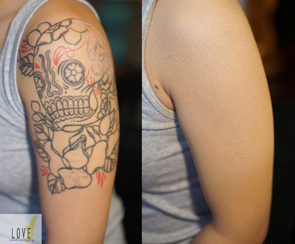 Tattoo Cover Up | Airbrush Smudge-proof / Rub-proof / Waterproof - Yelp