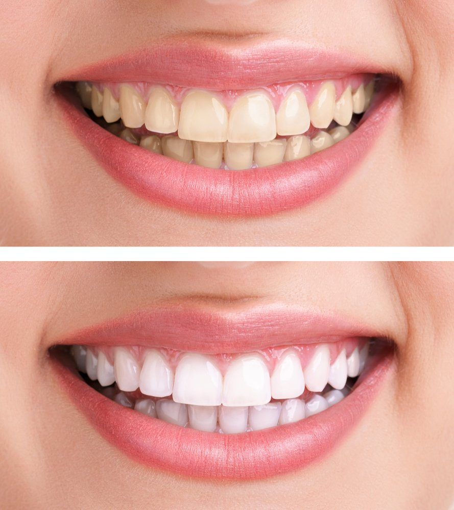All About How To Whiten Teeth Naturally With Braces Natural Ways