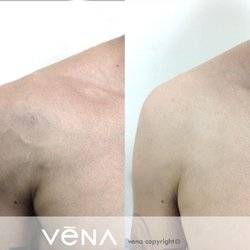 Facial vein treatment glendale