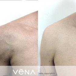 Facial vein treatment glendale