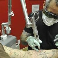 Tat2 Removers - 13 Photos & 12 Reviews - Tattoo Removal - 2600 S Lp W ...